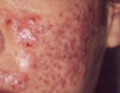 Schwere Akne