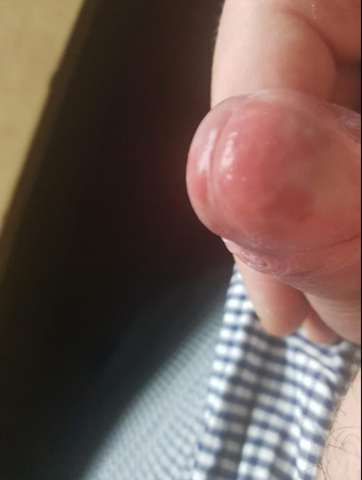 juckende rote pickel auf penis pics