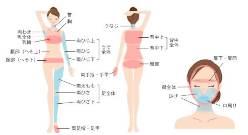 肌クリニック大宮の脱毛範囲画像