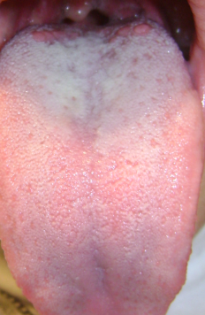 Limba albicioasa tratament