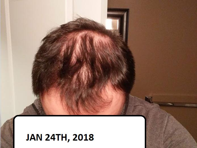 My Hair Loss Journey Beyond Ca Car Forums