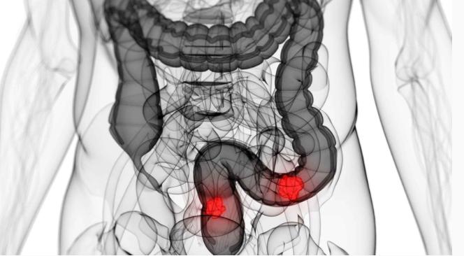 cancer de colon foro)